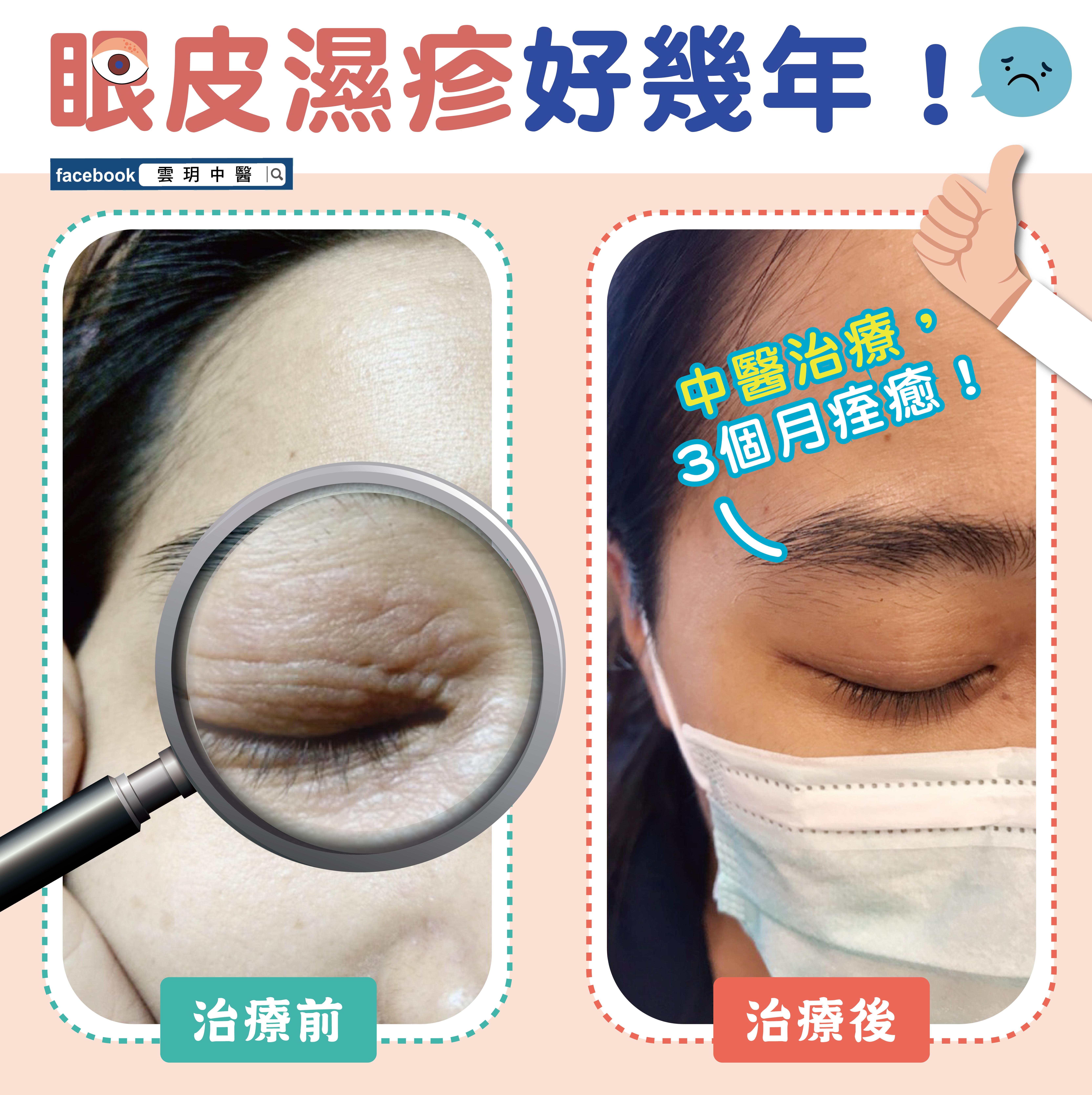 圖片十眼部濕疹案分-03
