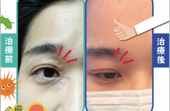 【眼部濕疹】 院長 盧彥芝醫師