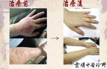 【妊娠蕁麻疹】雲玥中醫醫療體系醫師群
