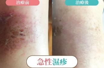 【急性濕疹(小腿) 治療】雲玥中醫體系醫師群