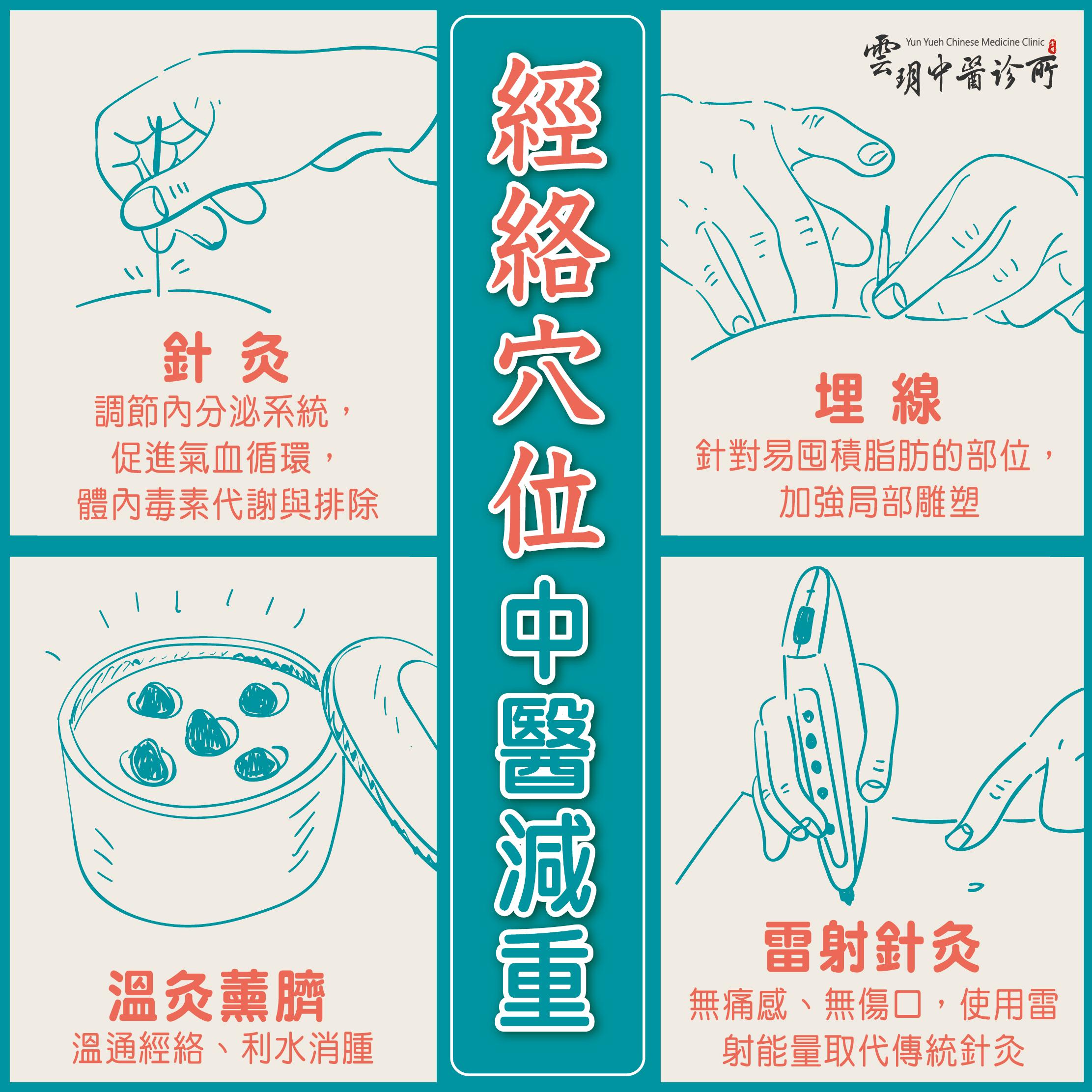 中醫埋線減肥+針灸減重